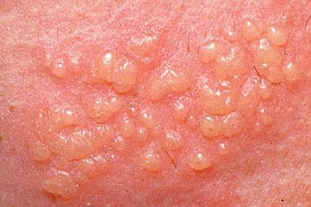 Herpes infections - herpes encephalitis and shingles can display