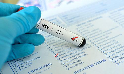Results - Treatment 4 Herpes